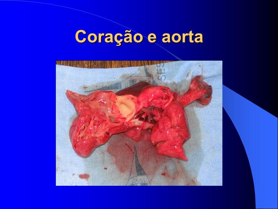 Coração e aorta
