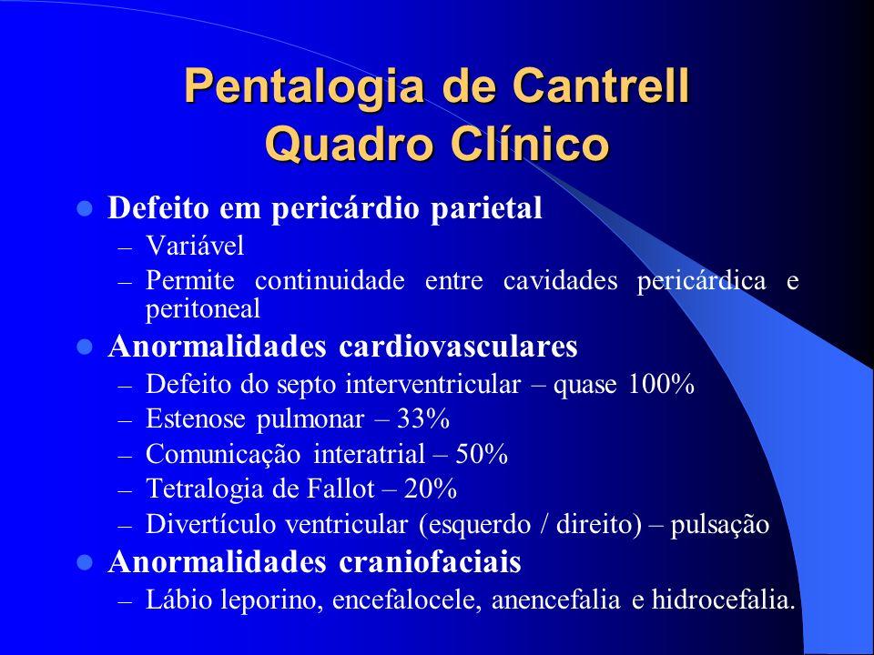 Pentalogia de Cantrell Quadro Clínico