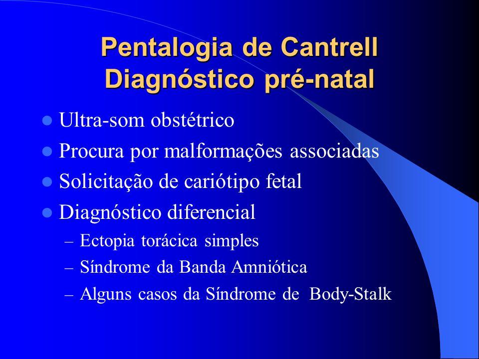 Pentalogia de Cantrell Diagnóstico pré-natal