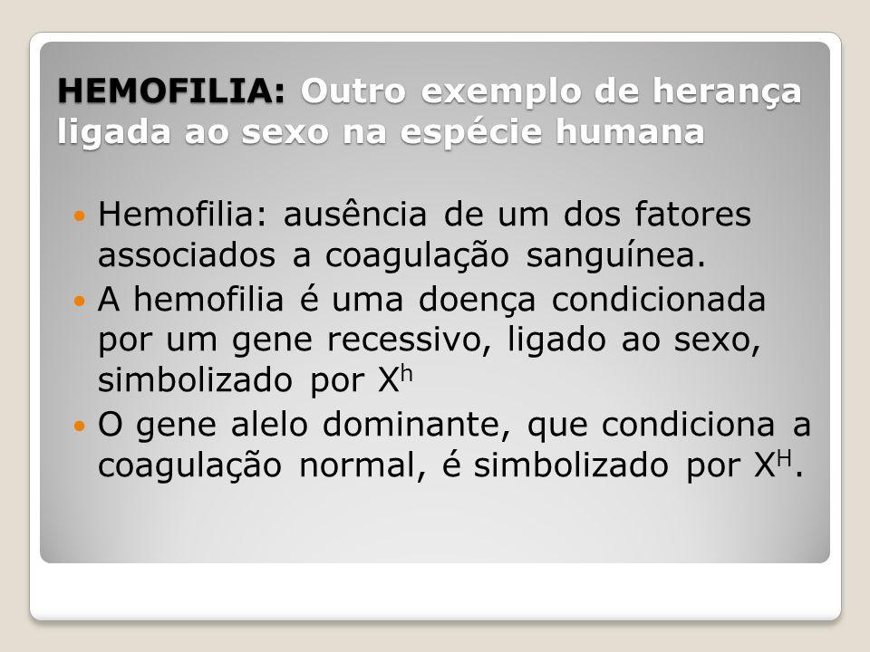 HEMOFILIA: Outro exemplo de herança ligada ao sexo na espécie humana