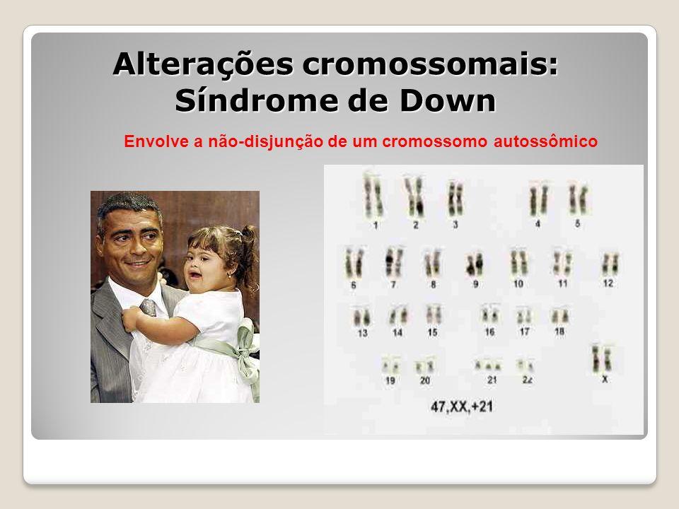 Alterações cromossomais: Síndrome de Down