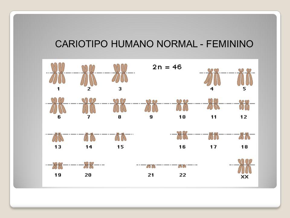 CARIOTIPO HUMANO NORMAL - FEMININO