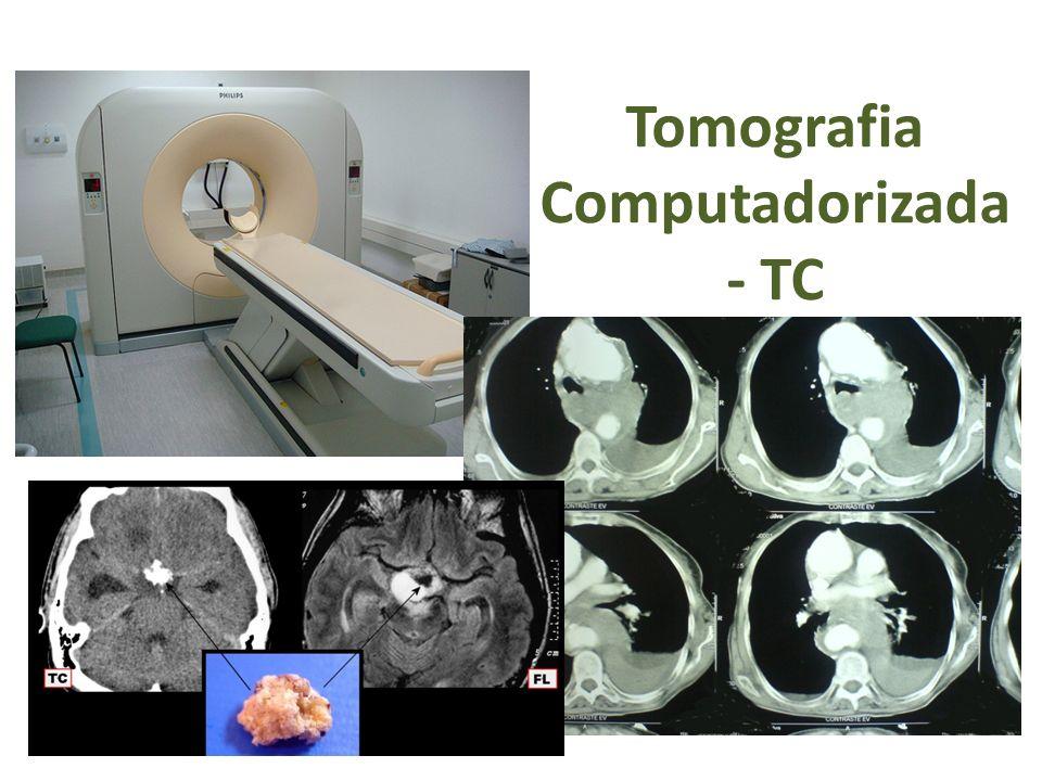 Tomografia Computadorizada - TC