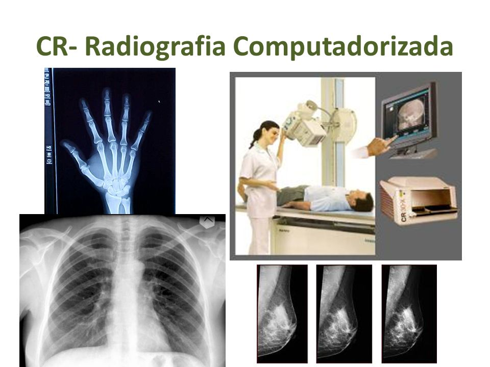 CR- Radiografia Computadorizada