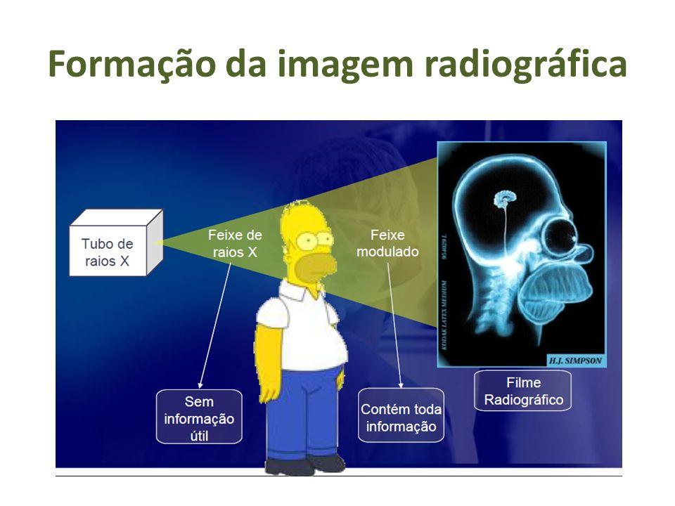Formação da imagem radiográfica