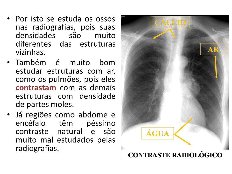 Por isto se estuda os ossos nas radiografias, pois suas densidades são muito diferentes das estruturas vizinhas.