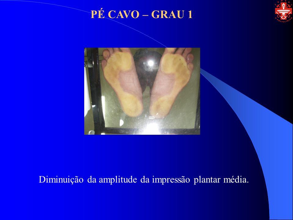 PÉ CAVO – GRAU 1 Diminuição da amplitude da impressão plantar média.