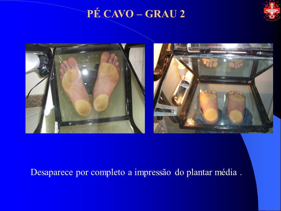 PÉ CAVO – GRAU 2 Desaparece por completo a impressão do plantar média .