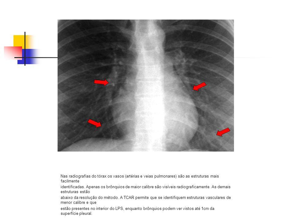 Nas radiografias do tórax os vasos (artérias e veias pulmonares) são as estruturas mais facilmente