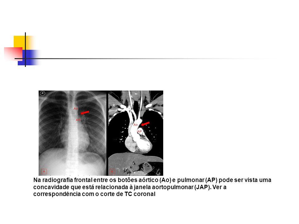 Na radiografia frontal entre os botões aórtico (Ao) e pulmonar (AP) pode ser vista uma