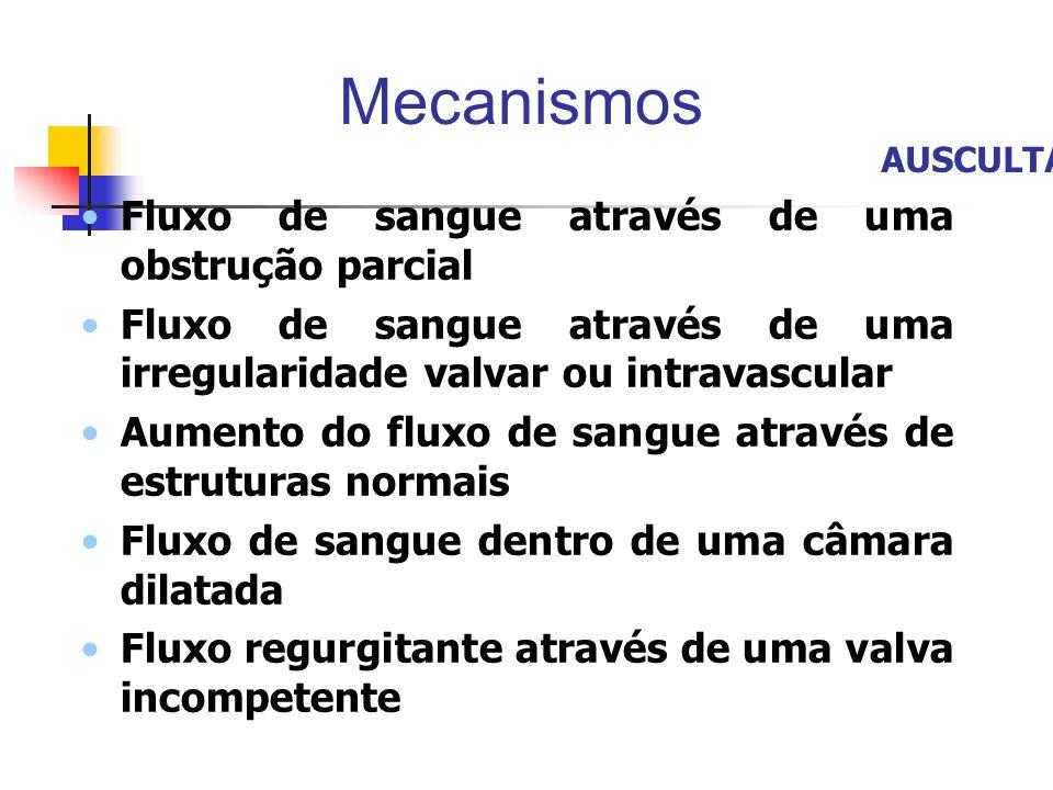 Mecanismos Fluxo de sangue através de uma obstrução parcial