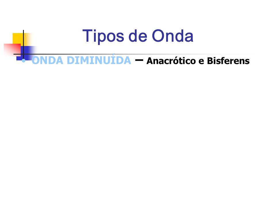 Tipos de Onda ONDA DIMINUÍDA – Anacrótico e Bisferens