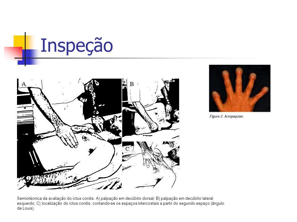 InspeçãoSemiotécnica da avaliação do ictus cordis. A) palpação em decúbito dorsal; B) palpação em decúbito lateral.