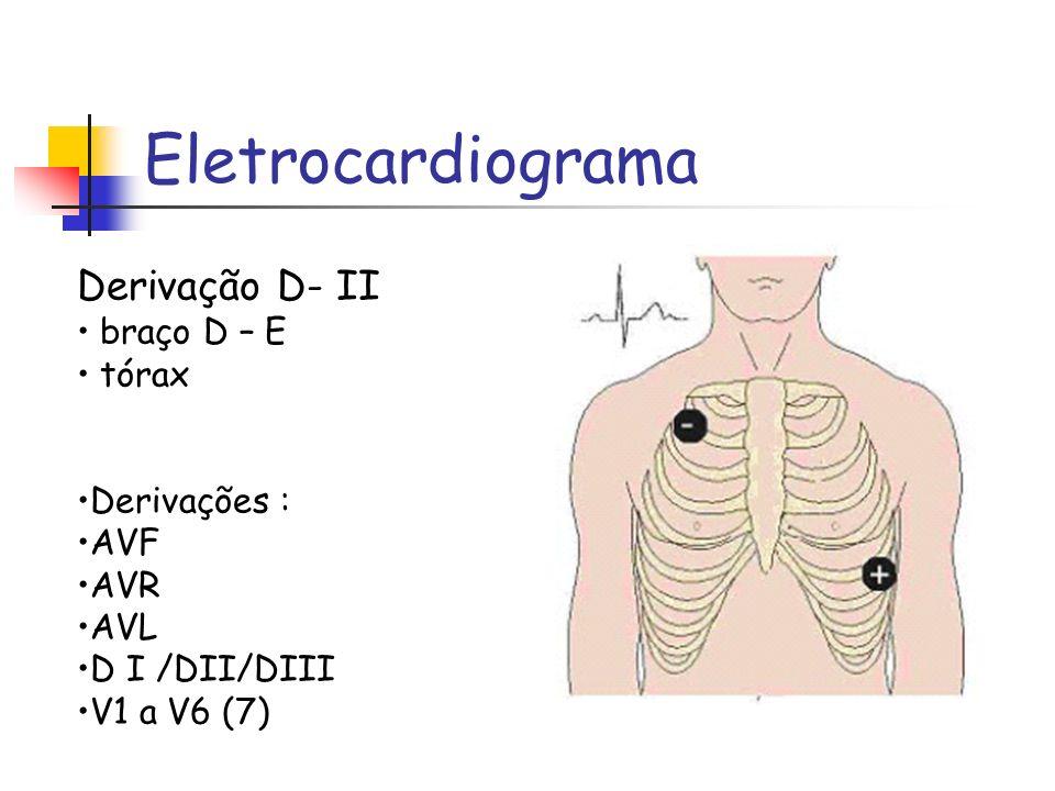 Eletrocardiograma Derivação D- II braço D – E tórax Derivações : AVF