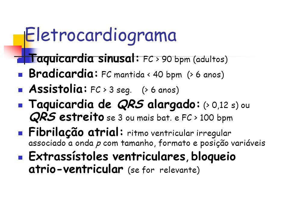 Eletrocardiograma Taquicardia sinusal: FC > 90 bpm (adultos)