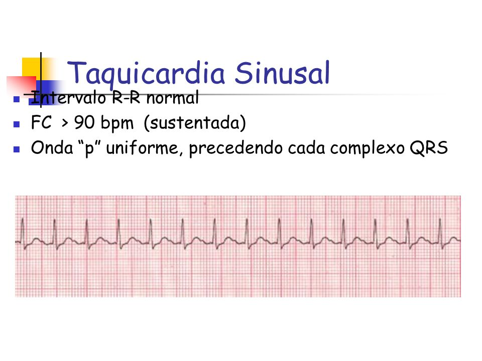 Taquicardia Sinusal Intervalo R-R normal FC > 90 bpm (sustentada)