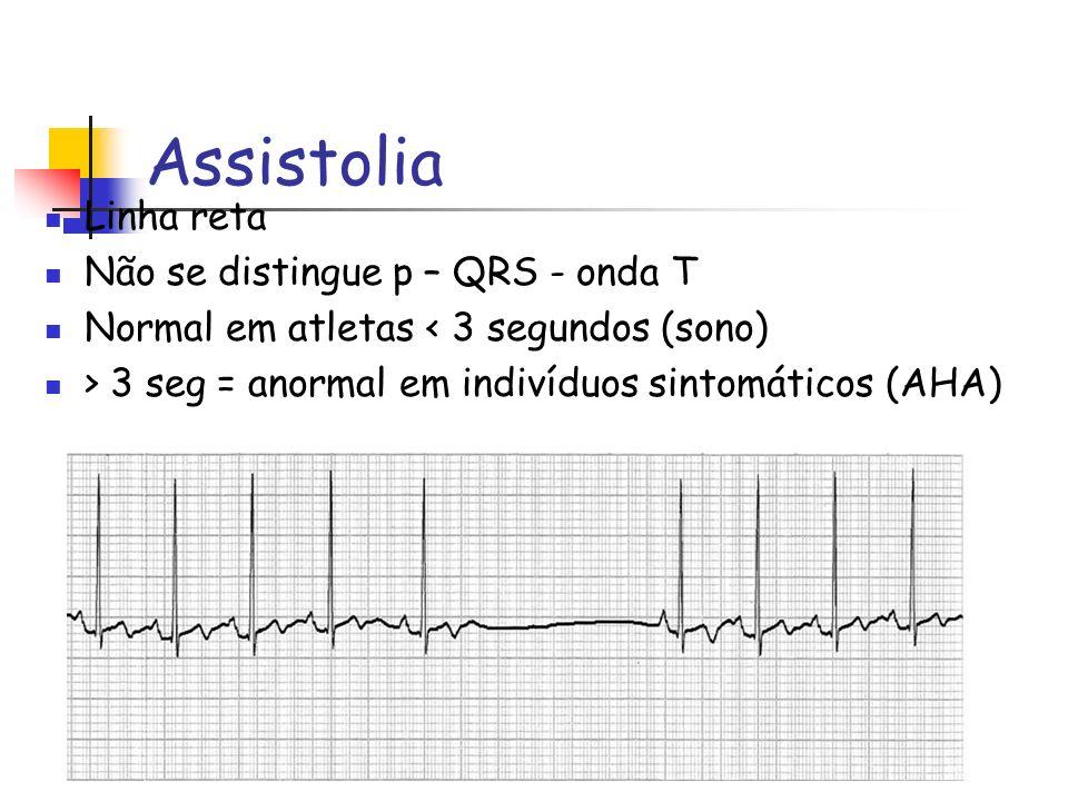 Assistolia Linha reta Não se distingue p – QRS - onda T