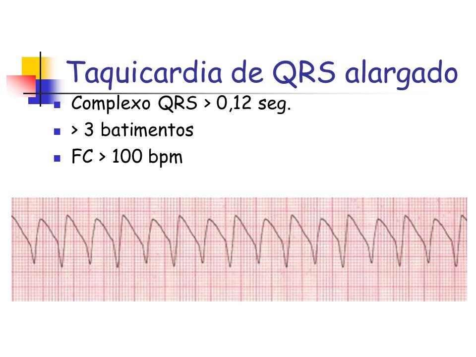Taquicardia de QRS alargado