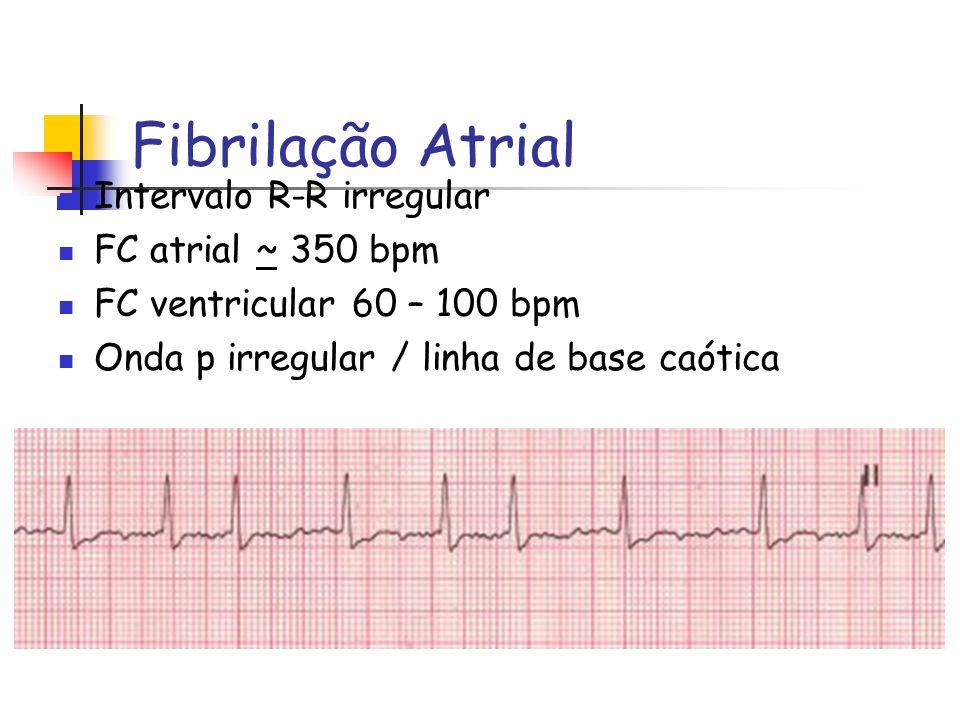Fibrilação Atrial Intervalo R-R irregular FC atrial ~ 350 bpm