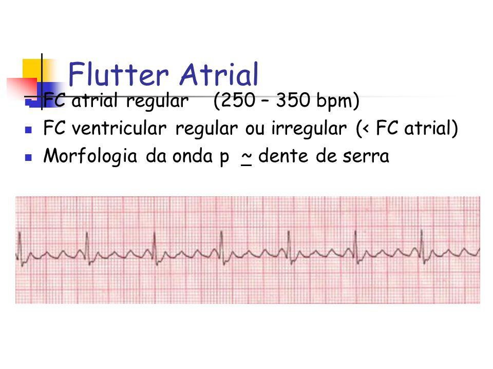 Flutter Atrial FC atrial regular (250 – 350 bpm)