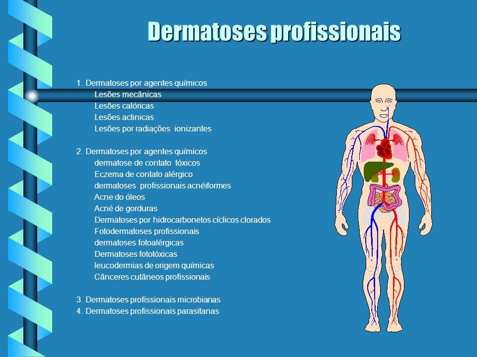 Dermatoses profissionais