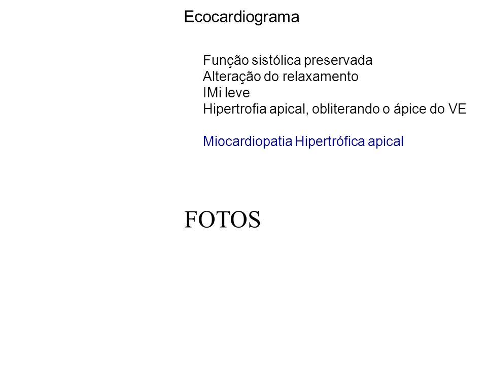 FOTOS Ecocardiograma Função sistólica preservada