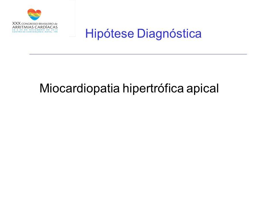 Hipótese Diagnóstica Miocardiopatia hipertrófica apical