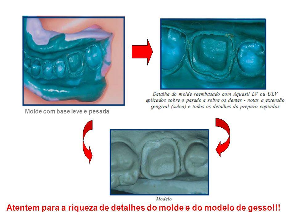 Atentem para a riqueza de detalhes do molde e do modelo de gesso!!!