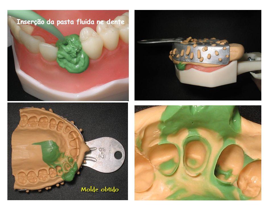 Inserção da pasta fluida ne dente
