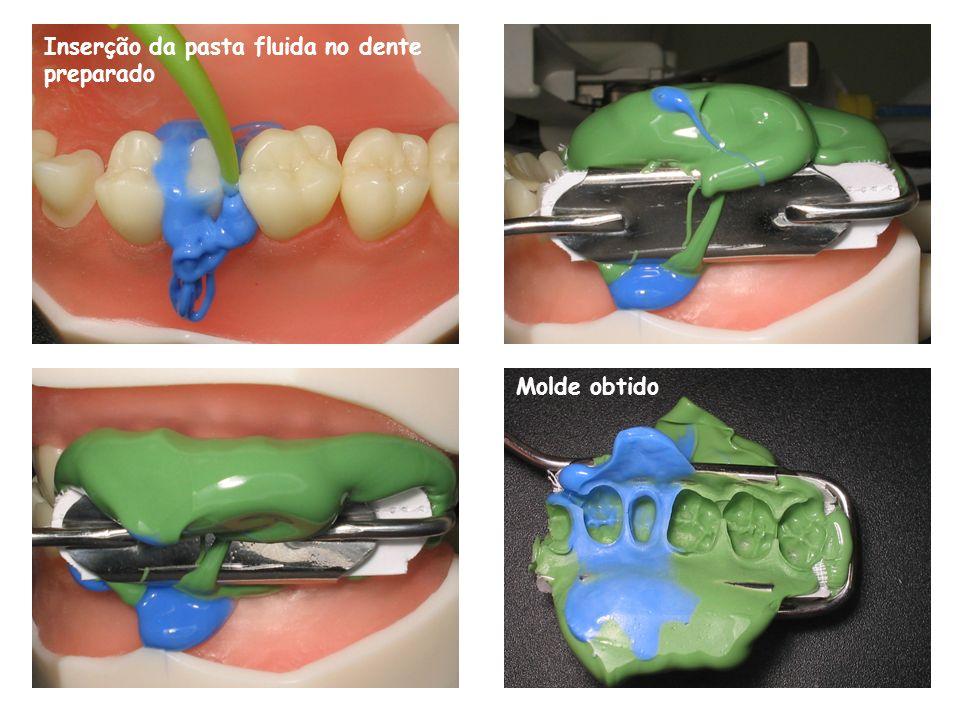 Inserção da pasta fluida no dente preparado