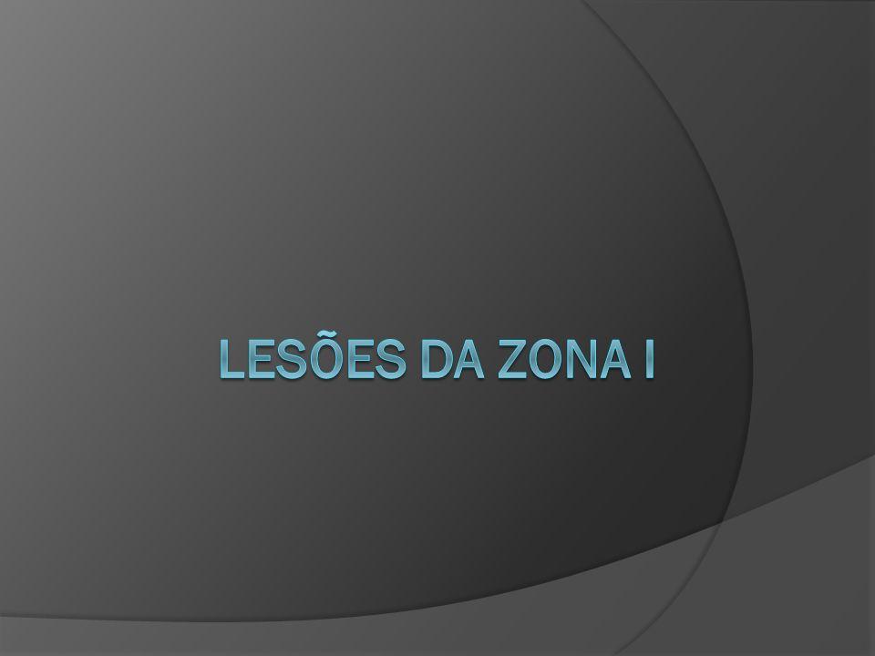 Lesões da Zona i