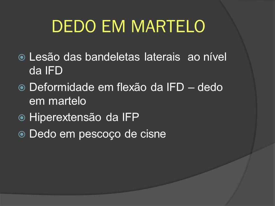 DEDO EM MARTELO Lesão das bandeletas laterais ao nível da IFD