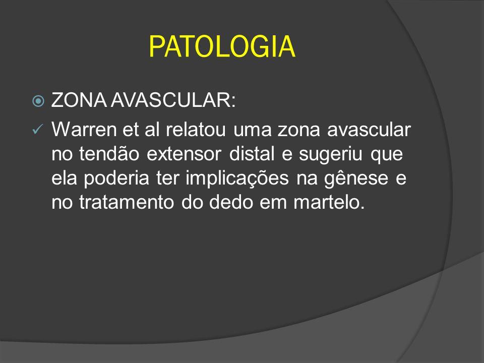 PATOLOGIA ZONA AVASCULAR: