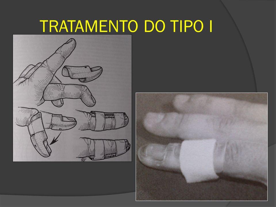 TRATAMENTO DO TIPO I