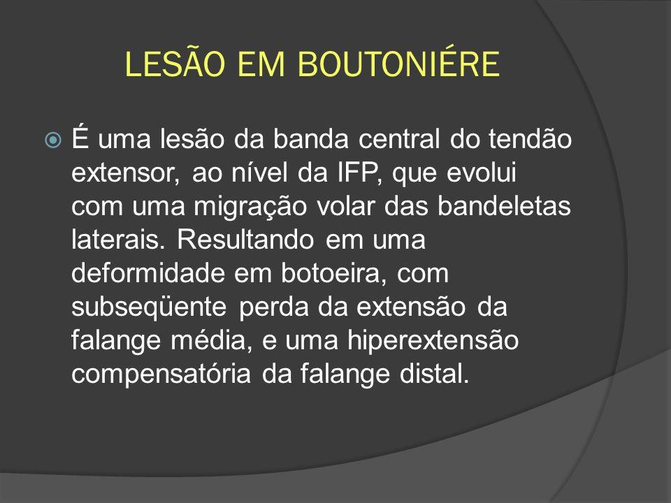 LESÃO EM BOUTONIÉRE