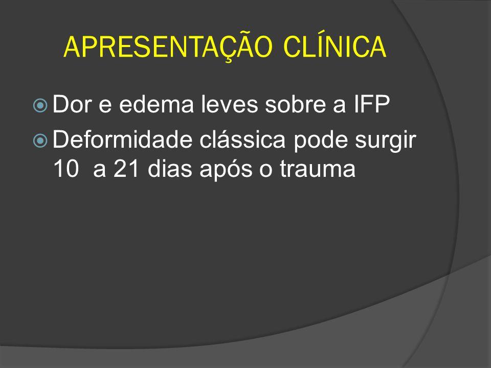 APRESENTAÇÃO CLÍNICA Dor e edema leves sobre a IFP