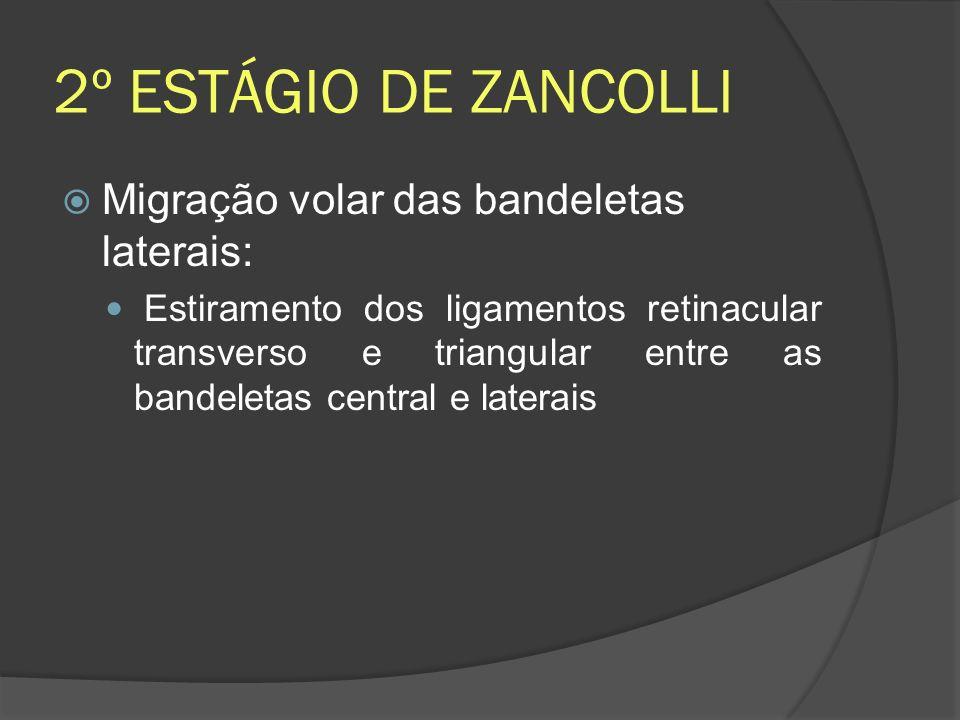 2º ESTÁGIO DE ZANCOLLI Migração volar das bandeletas laterais:
