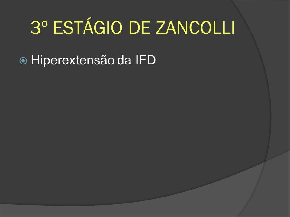 3º ESTÁGIO DE ZANCOLLI Hiperextensão da IFD