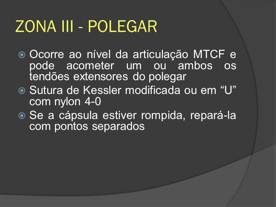 ZONA III - POLEGAR Ocorre ao nível da articulação MTCF e pode acometer um ou ambos os tendões extensores do polegar.