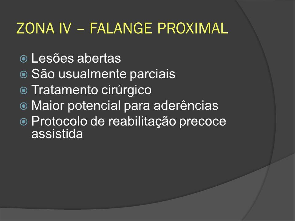ZONA IV – FALANGE PROXIMAL