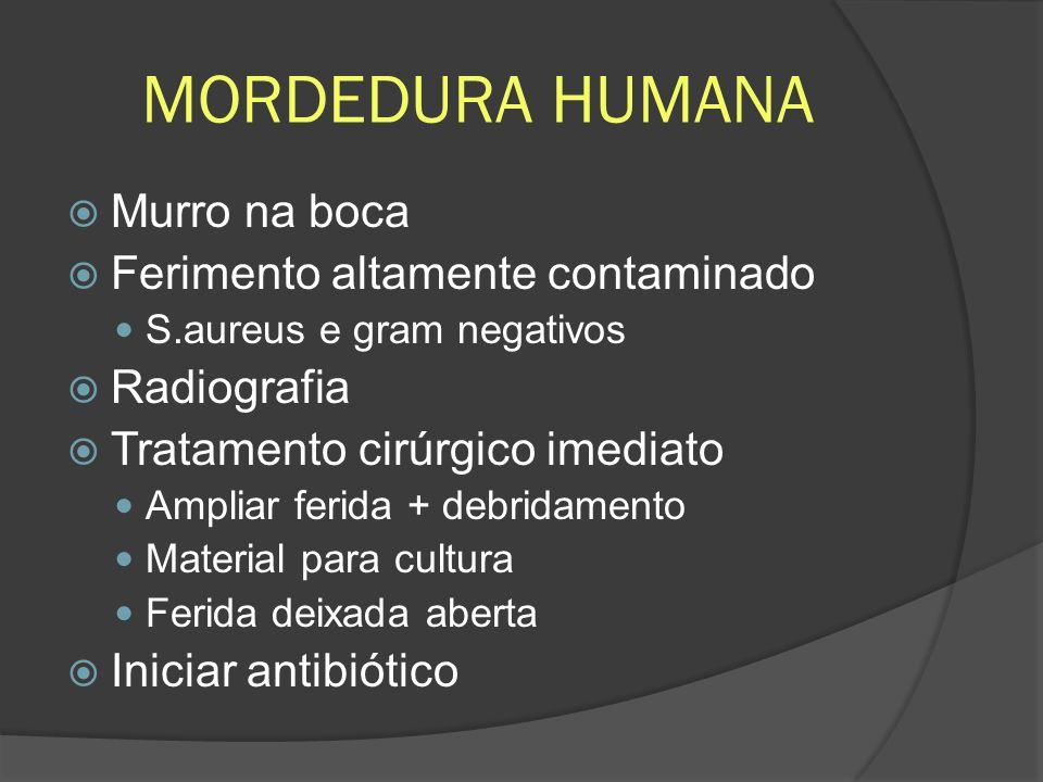 MORDEDURA HUMANA Murro na boca Ferimento altamente contaminado