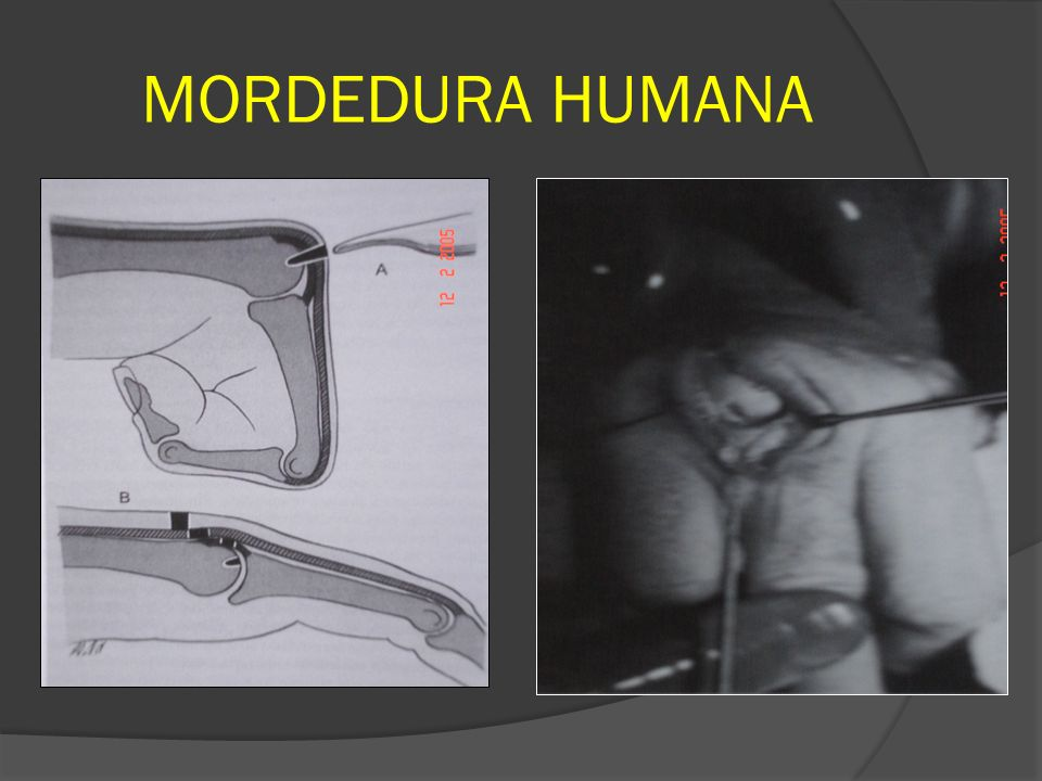 MORDEDURA HUMANA