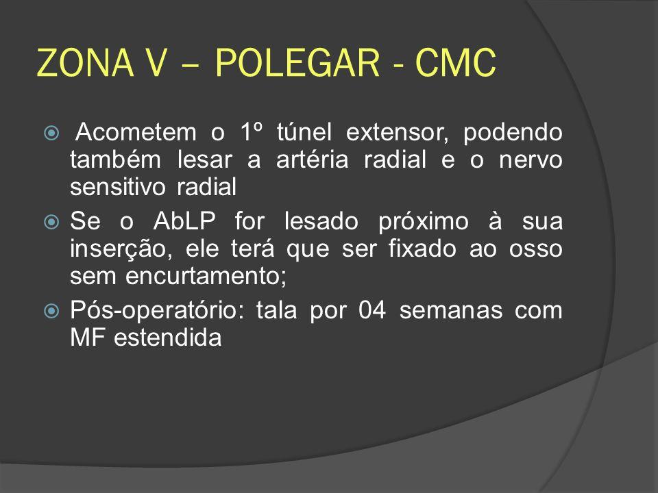 ZONA V – POLEGAR - CMC Acometem o 1º túnel extensor, podendo também lesar a artéria radial e o nervo sensitivo radial.