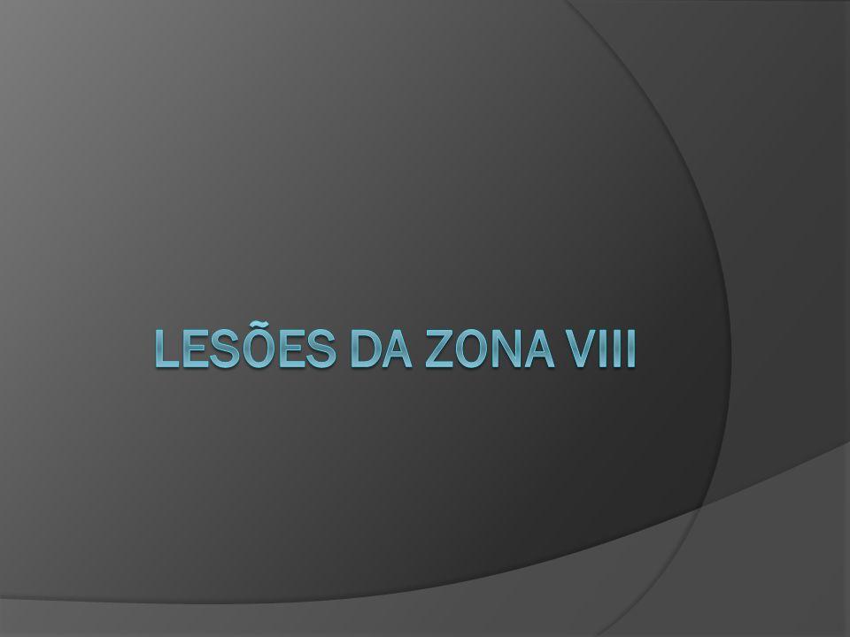 LESÕES DA ZONA VIII