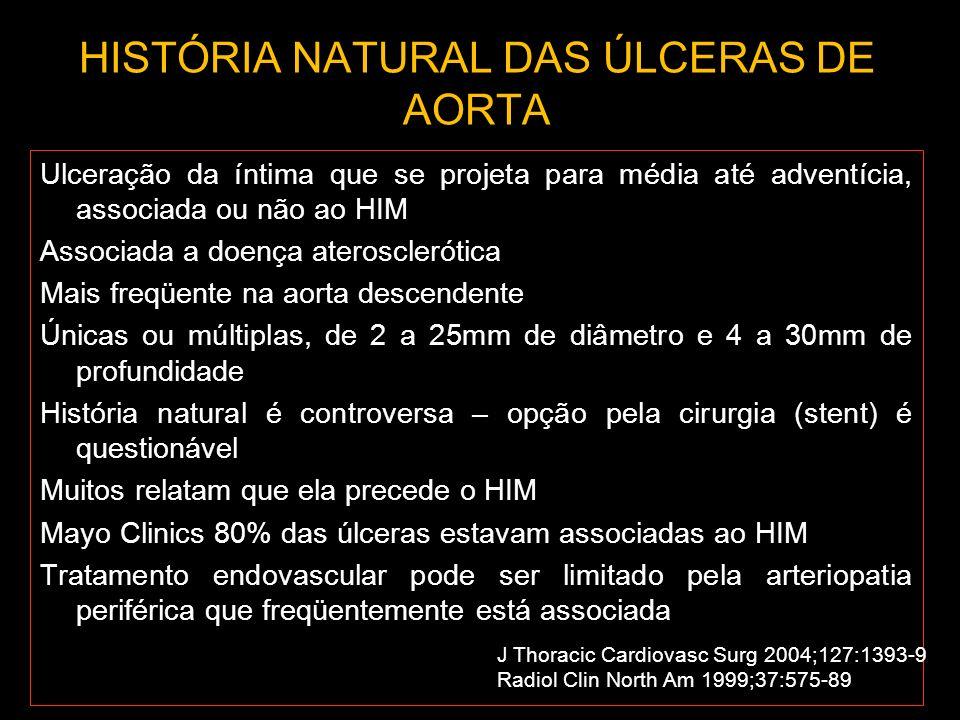 HISTÓRIA NATURAL DAS ÚLCERAS DE AORTA