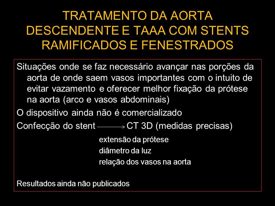 TRATAMENTO DA AORTA DESCENDENTE E TAAA COM STENTS RAMIFICADOS E FENESTRADOS