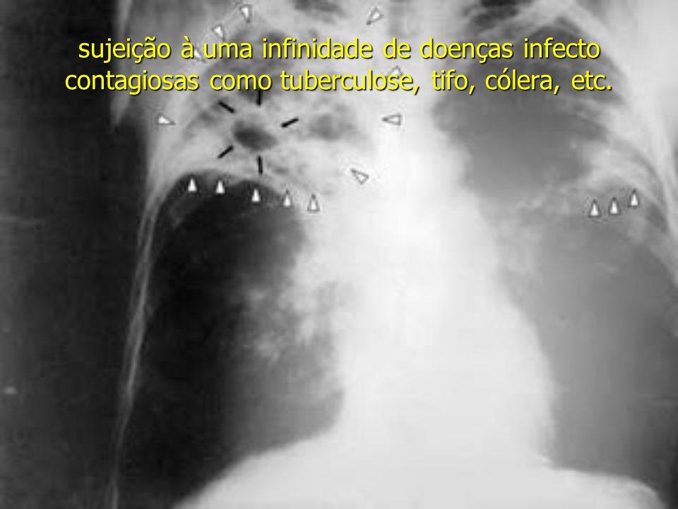 sujeição à uma infinidade de doenças infecto contagiosas como tuberculose, tifo, cólera, etc.