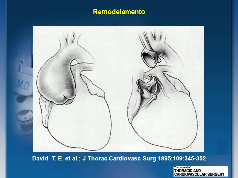 David T. E. et al.; J Thorac Cardiovasc Surg 1995;109:345-352