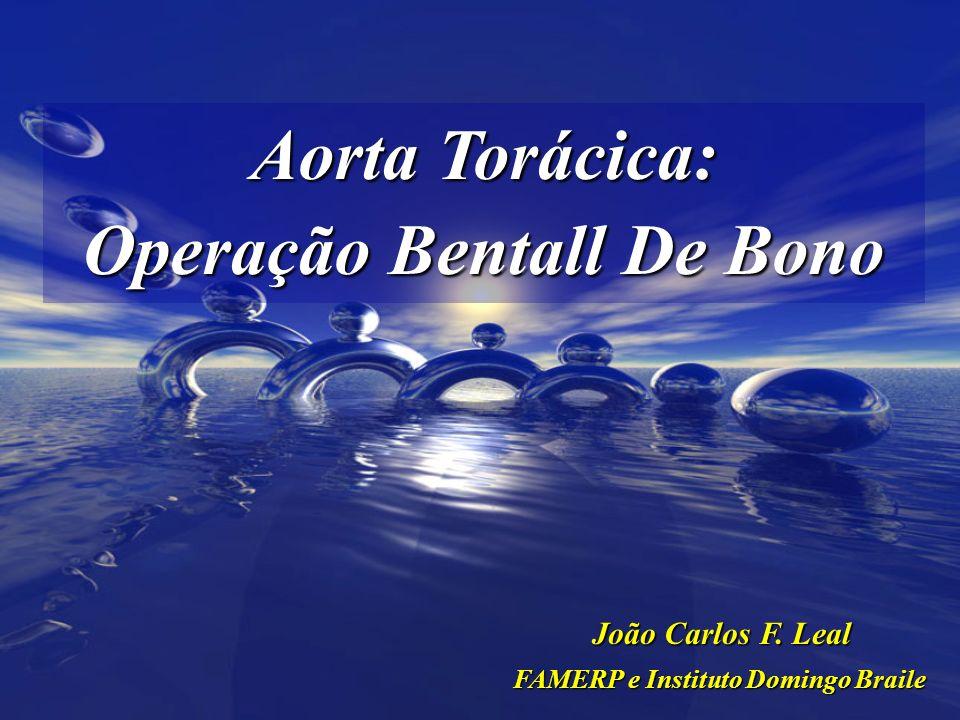 Operação Bentall De Bono FAMERP e Instituto Domingo Braile