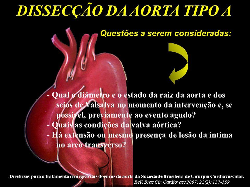 DISSECÇÃO DA AORTA TIPO A